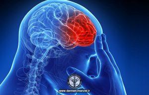 سردرد و نوع های مختلف آن ( بخش دو )