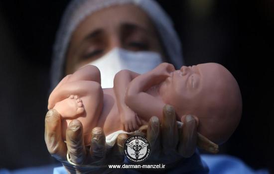 دلایل سقط جنین مکرر