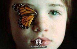 بیماری پروانه ای چیست ؟