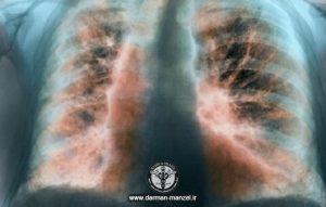 سی تی اسکن ریه بیماران مبتلا به کرونا